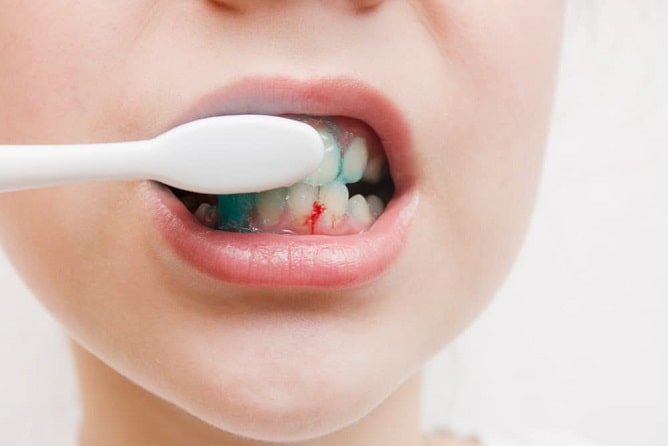 Causes and home remedies for gum bleeding-min