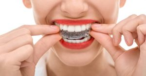 How to Keep Your Teeth Straight After Braces-min