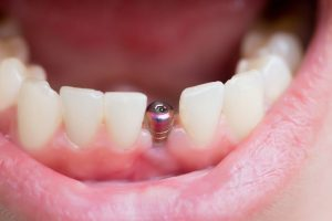 How will my dental implant be fitted-min
