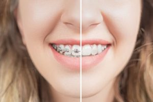 Steps for getting your braces removed-min