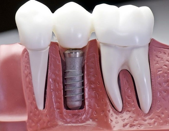 What is the procedure and aftercare of Dental implant surgery-min