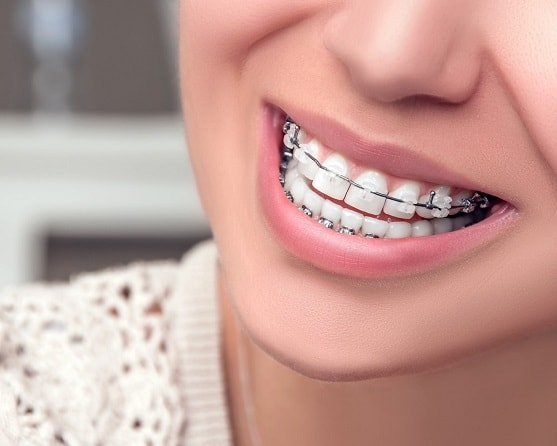 What to know about brace removal and after braces dental care-min
