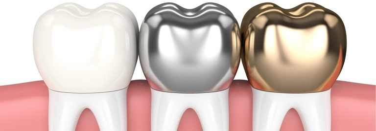 What type of Dental crowns is best for my teeth-min
