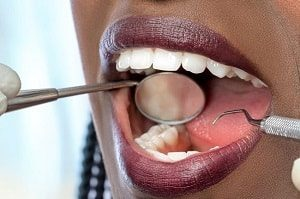 Can I whiten my teeth while pregnant