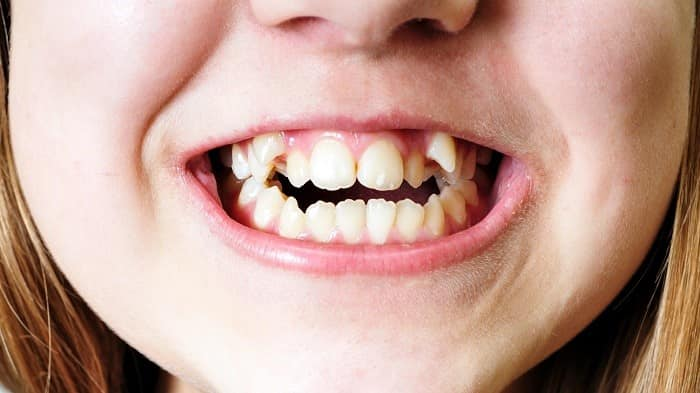 Crooked teeth causes، how to fix and straight crooked tooth
