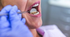 For a periapical abscess