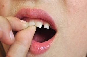 When Should You Pull a Baby Tooth