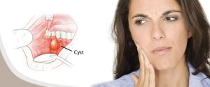 What problems can dental cysts cause
