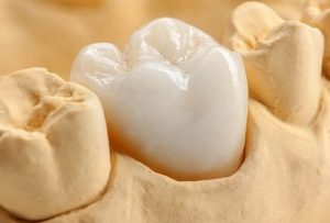 Advantages of Cosmetic Dental Crowns