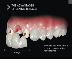 Advantages of Dental Bridges