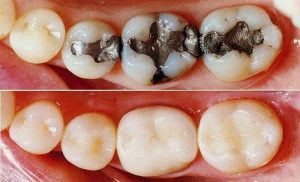 What is the difference between a composite filling and an amalgam filling