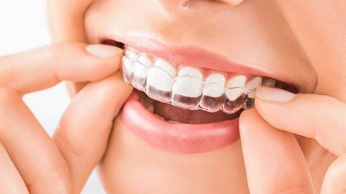 How Much Does a Bruxism Mouth Guard Cost